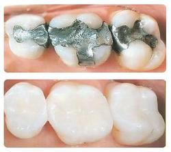 Is dental bonding before and after