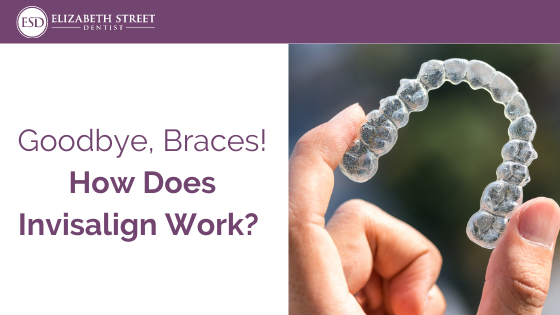 Goodbye, Braces! How Does Invisalign Work?