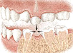 Bone loss after missing teeth