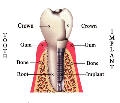 A dental implant diagram