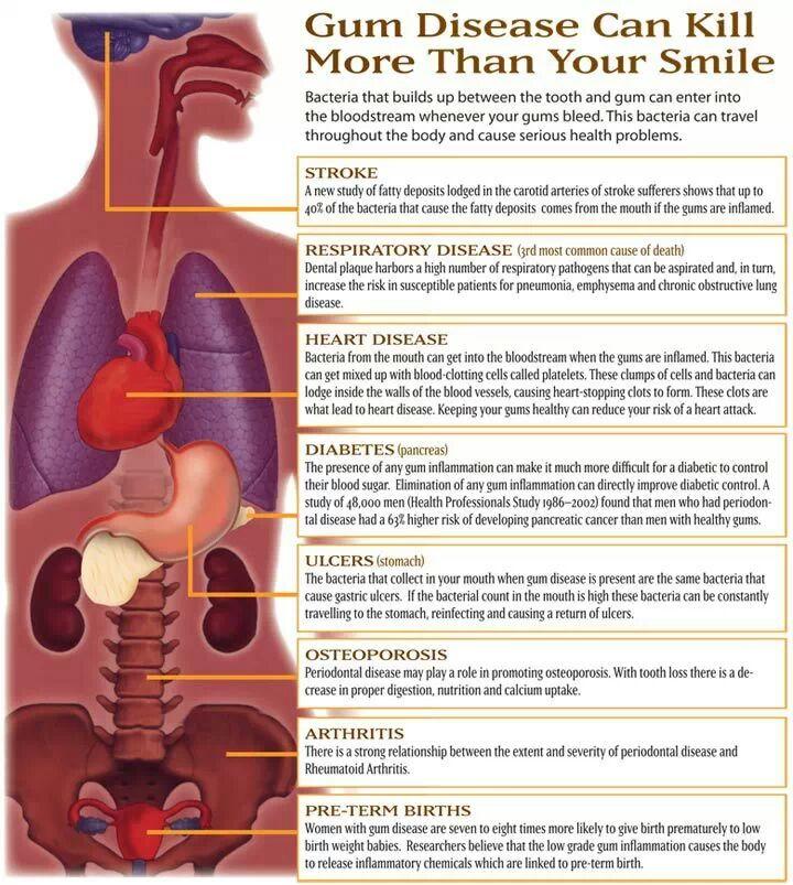 gum disease and body health